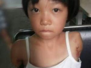 【超閲覧注意】台湾で拉致されて3年間性奴隷として飼われていた7才少女、ダルマ状態で無事(?)保護される・・・・・(エロ画像あり)